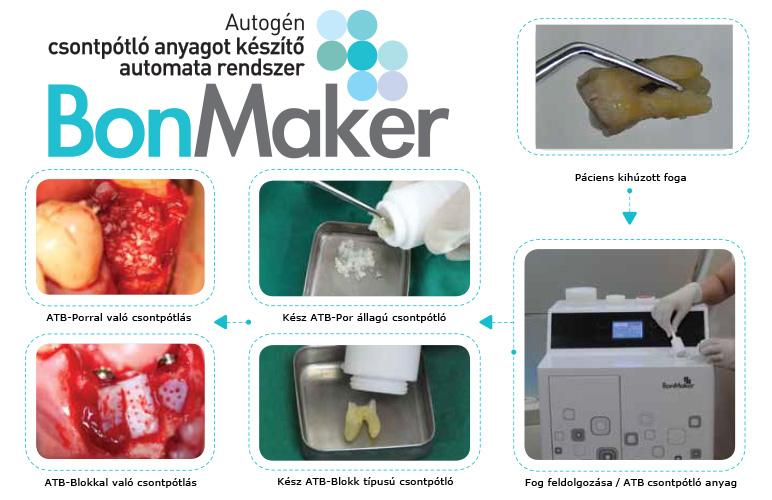 BonMaker fogból csontpótló anyag készítésének folyamata