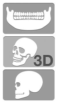 röntgen xmindtrium fejlesztheto