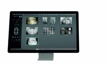 röntgen xmindtrium impl terv