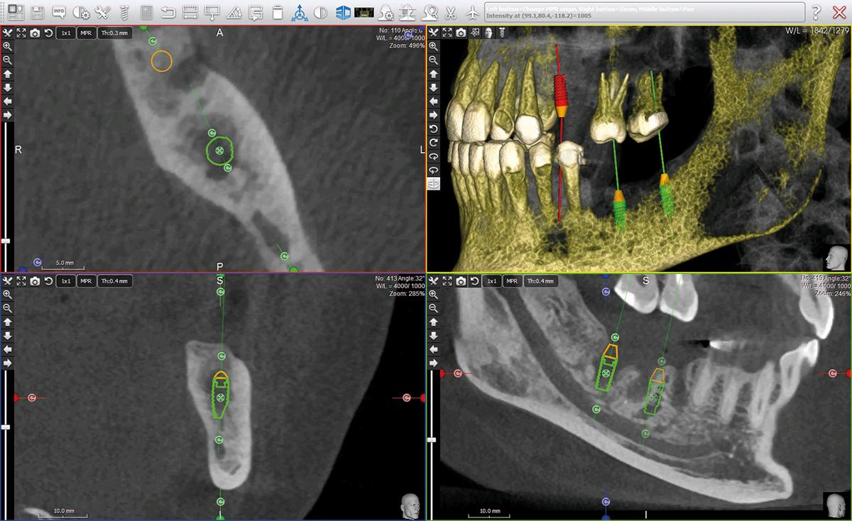 X-mind Trium panoráma röntgen kiváló képminőség